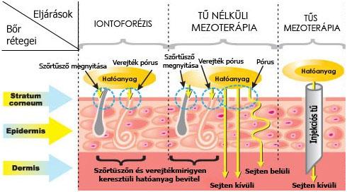 mezoterapia illustration